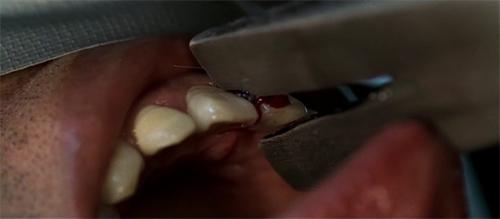 07oldboy-diente